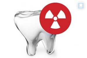 rontgenologie voor tandartsassistenten