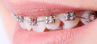 actp basiskennis orthodontie zomer 2021